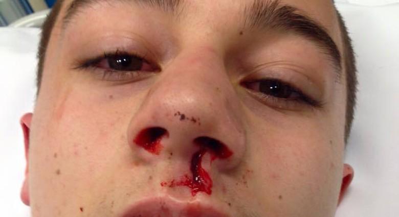 Jongen (16) mishandeld na verjaardag