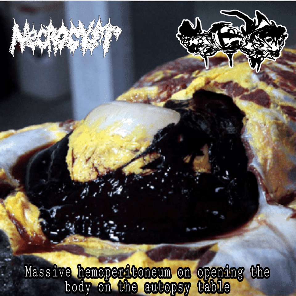 Necrocyst / Miastenia Gravis CDr split