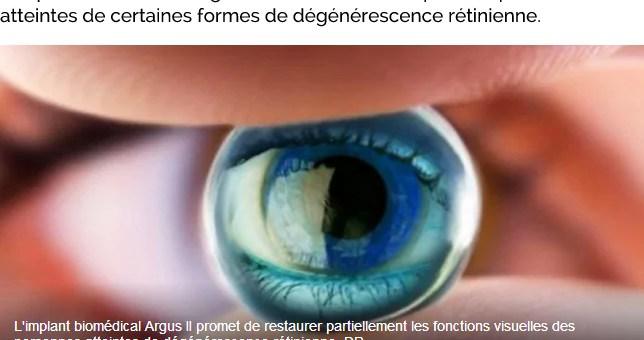 L'hôpital de Strasbourg pourra implanter la prothèse rétinienne Argus II