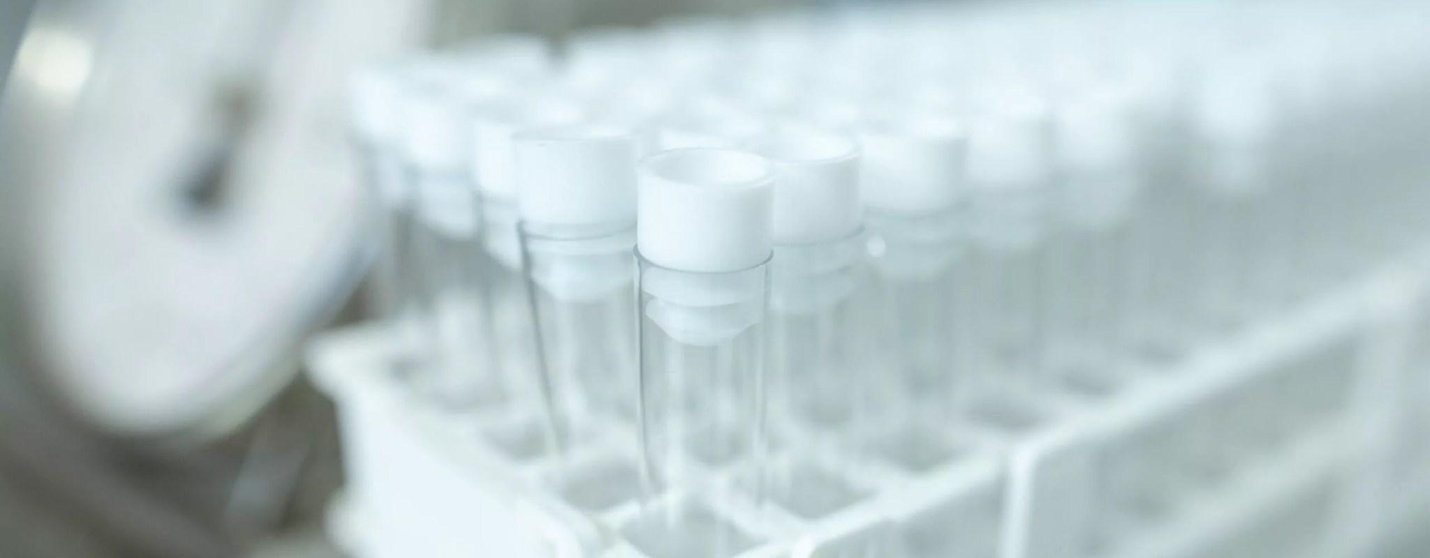 Une entreprise de Strasbourg provoque une fuite massive de résultats de tests antigéniques