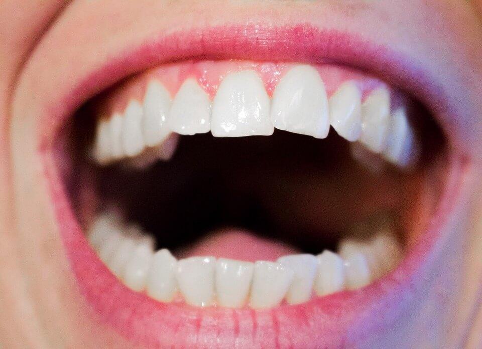 鹽水漱口預防牙周病
