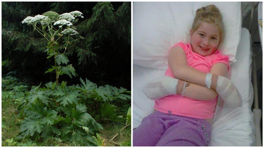網路瘋傳 女孩摸了一種「草」 竟然灼傷須植皮.到底是真的還是假的?(圖片來源:由 Fritz Geller-Grimm - 自己的作品, CC BY-SA 3.0, https://commons.wikimedia.org/w/index.php?curid=5595612)