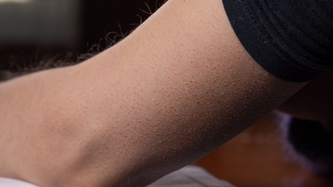 手臂有雞皮疙瘩一直消不掉?這是「 毛孔角化症 」,小心被錯誤迷思誤導啊