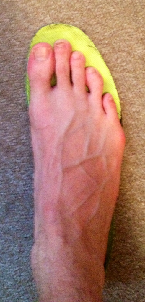 Running blisters - treatment and prevention