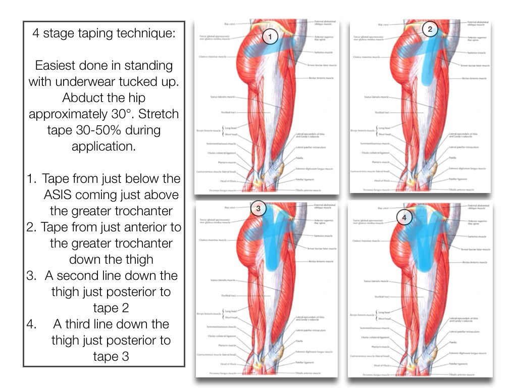 Gluteal Tendinopathy Runningphysio