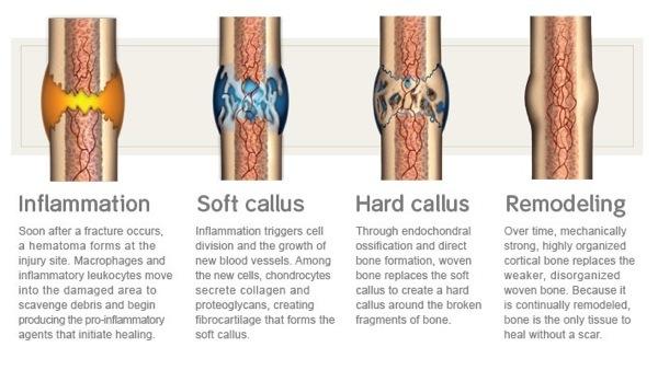 Stress Fracture Healing
