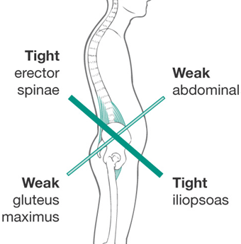 Exercises to Correct Tight Hip Flexors: Undoing Effects of