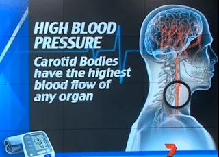 علاج جراحي يقضي علي مرض ارتفاع ضغط الدم نهائياً ! 1