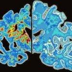 فيتامين ب12 قد يسهم في علاج الشلل الرعاش (مرض باركنسون) 3