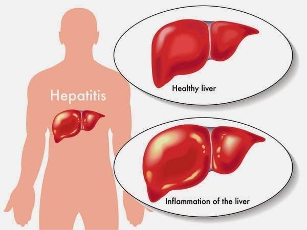 علاج جديد لفيرس سي يتمكن من علاج 90% من حالات التليف الكبدي المتقدمة 2