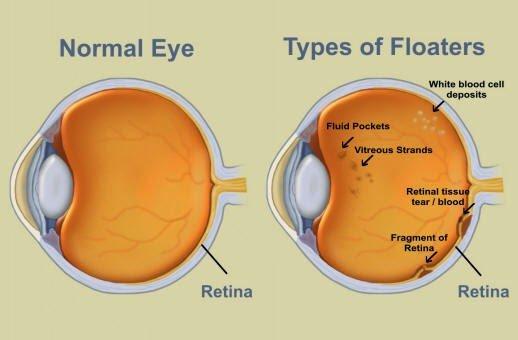 ذبابة العين ( عوامات العين ) ومتى تصبح خطيرة؟ 1