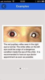صور الهاتف الجوال تنقذ الأطفال من سرطان شبكية العين ! 2