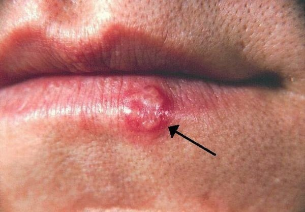 فيروس الهربس البسيط : قرحة صغيرة قد تعني الخطر على حياة طفلك ! 5