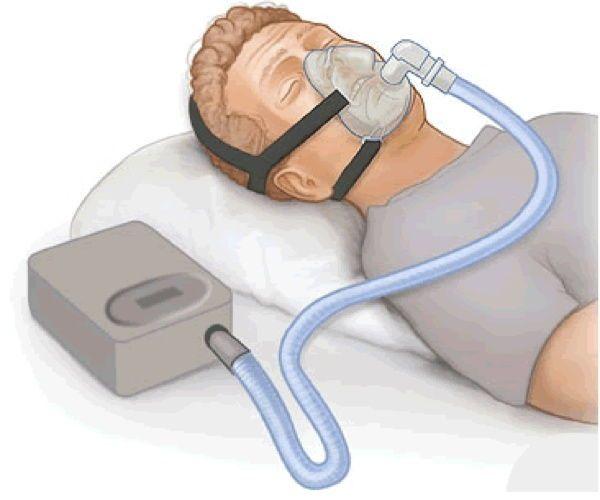 إنقطاع التنفس أثناء النوم و جهاز micro CPAP بدون خراطيم و أسلاك لعلاج المشكلة