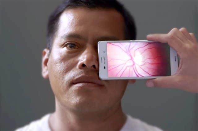 ملحقات كاميرا هاتفك الجوال تحوله لآداة طبية لتشخيص الأمراض