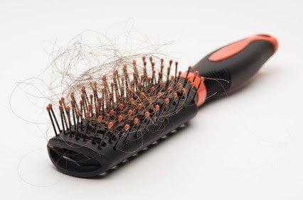 20 سبب من أسباب تساقط الشعر و طرق علاجه منزلياً 1