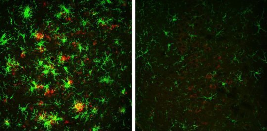 لأول مرة : العلماء ينجحون في عكس تأثير الزهايمر ! 3