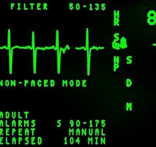 تخطيط القلب يستخدم ضمن فحوص الارتجاع البيولوجي
