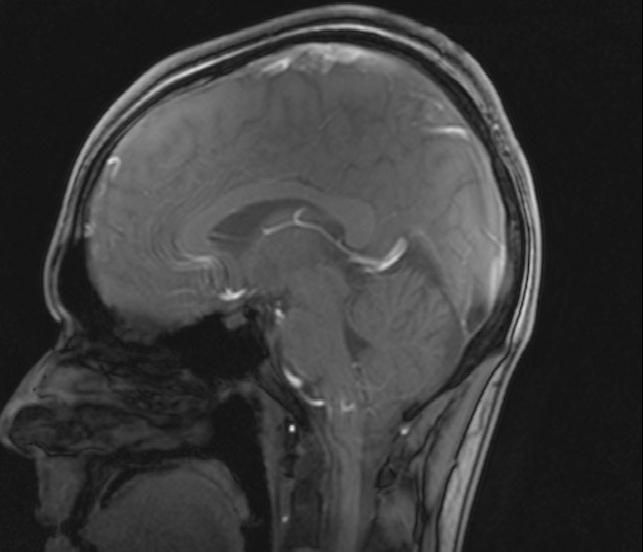 So sieht das Gehirn unseres Redakteurs also von innen aus. Foto: privat