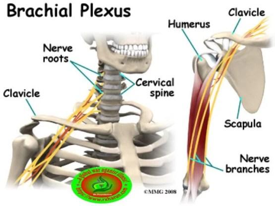 Stingers Syndrome; Causes, Symptoms, Diagnosis, Treatment,