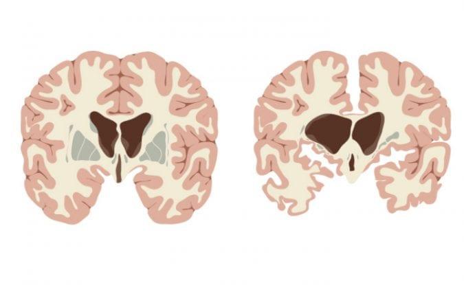 Normal vs Huntingtons Disease