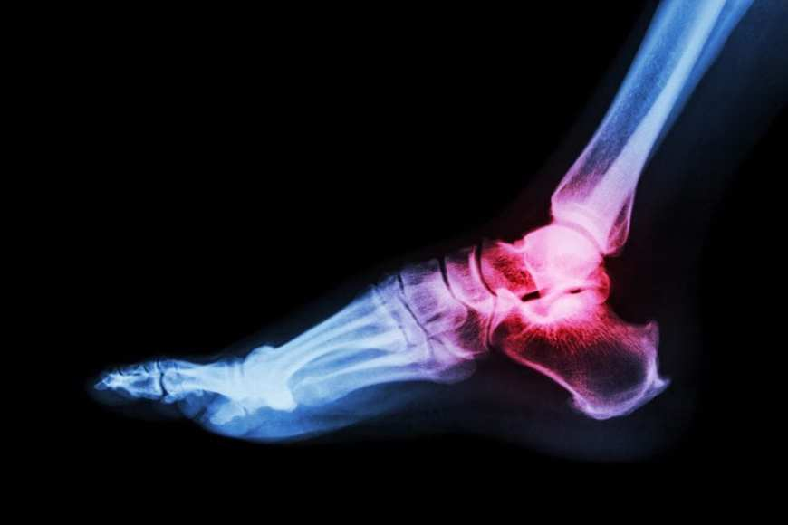 Painful Arthritis in Ankle Xray