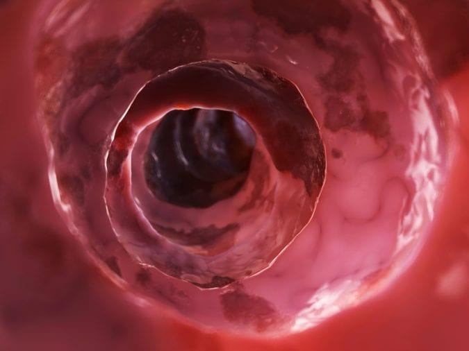 Inside a diseased colon