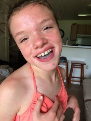 neuroblastoma girl recovering