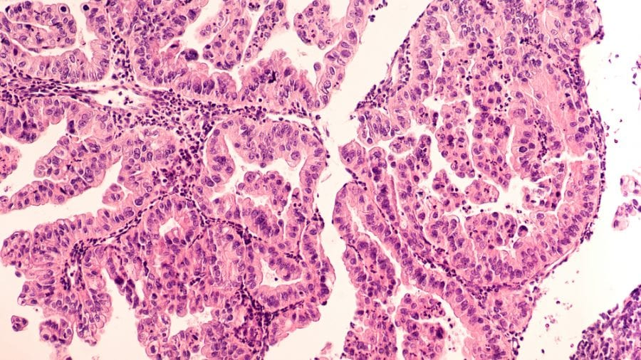 Micrograph showing ovarian cancer cells