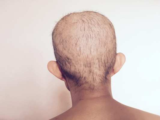 Balding from Chemo Treatment