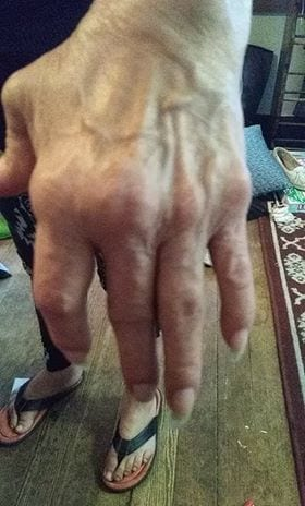 hand of someonw who did not just get diagnosed with rheumatoid arthritis, but has managed it for years with cannabis