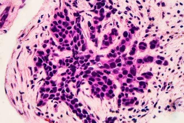 Beast Cancer Micrograph