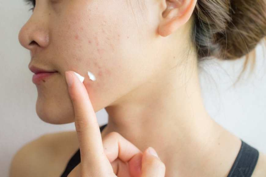 Young woman with acne putting cream on her face