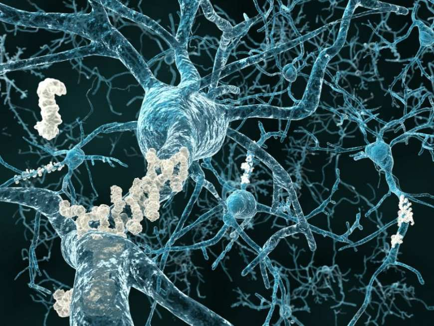 Neuroplasticity in dementia patients represented by image of a blocking proteins