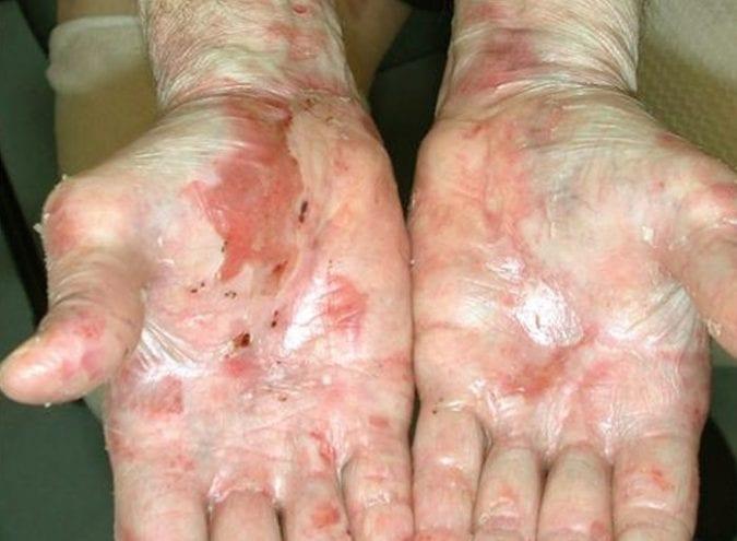 Epidermolysis Bullosa in the Hands