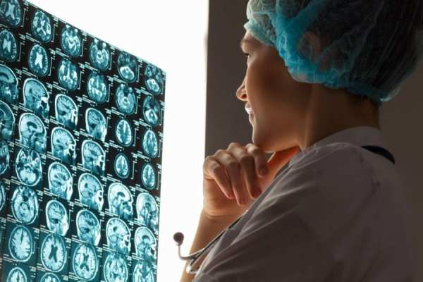 Doctor looking at MRI brain glioma present
