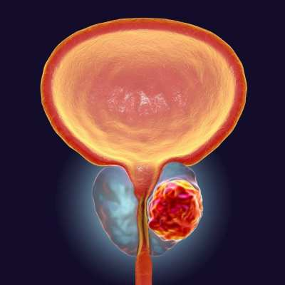 animation of bladder and prostate