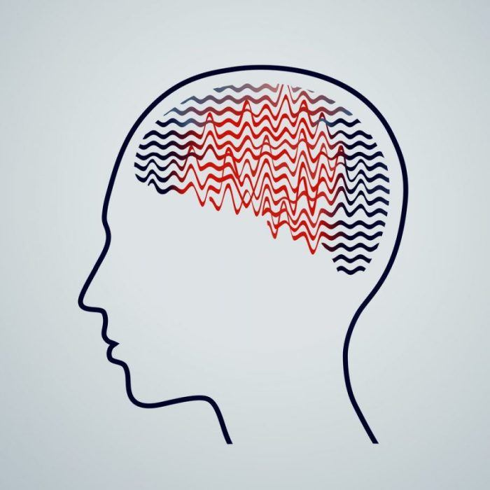 drawing of human head in profile with seizure waves in brain cannabis oil and seizures