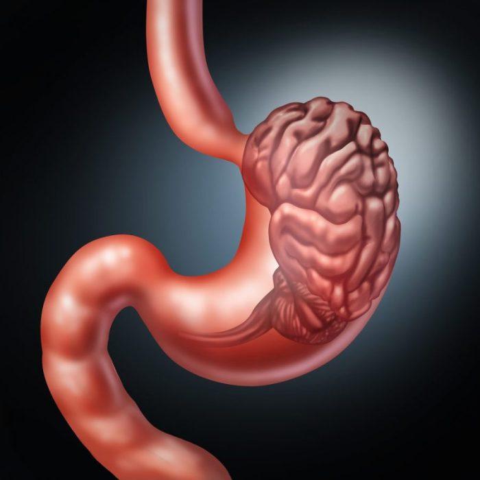 brain, gut, ENT, enteric nervous system, cannabis, cannabinoids, hummus, brain health, gut health, hummus recipes