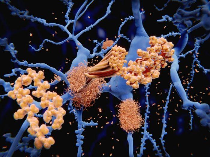 a-beta, alzheimer's, THC, THC and dementia, dementia, endocannabinoid system, cannabinoids, neurodegenerative disease, research, cannabis