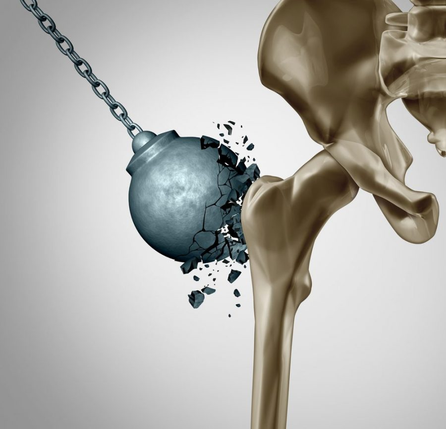 bone density, CBD, osteoporosis, medical cannabis, heals bones, bones. strong bones, weed, smoke cannabis
