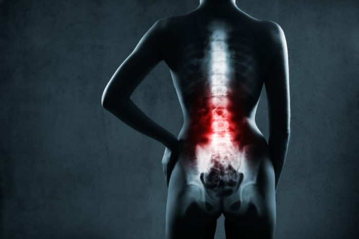 x ray showing intervertebral disc damage