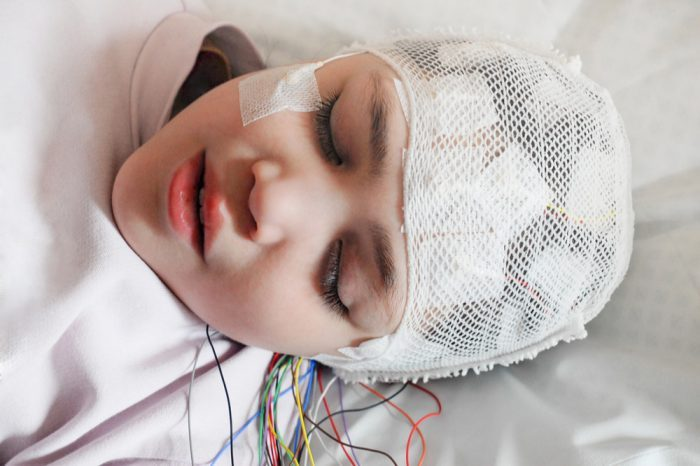 how much cbd for epilepsy represented by young woman hooked up to brain wave monitor