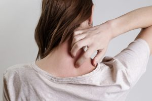treating shingles naturally could be what this young woman itching needs