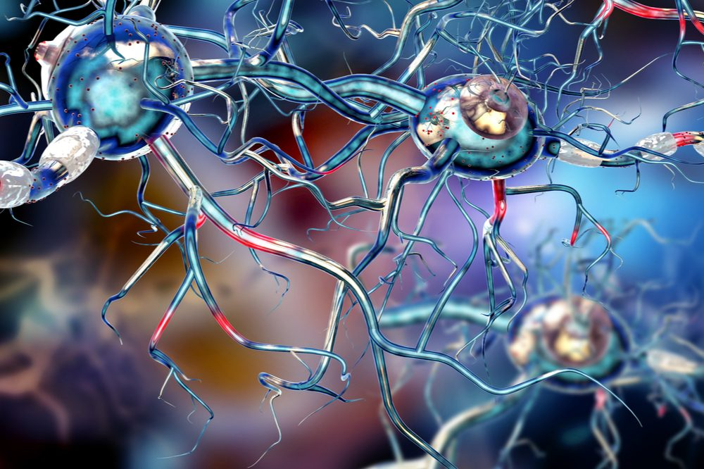 An artist's impression of a neurological condition in action. Cannabis could help with these if it enters into more clinical trials for MS and other brain diseases