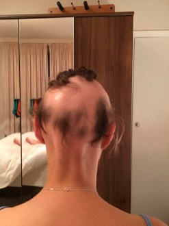 Michelle perdeu quase todo o cabelo perde - Fonte: Olivia West