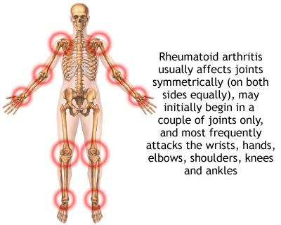 Rheumatoid Arthritis patient cured by Dr sabeel
