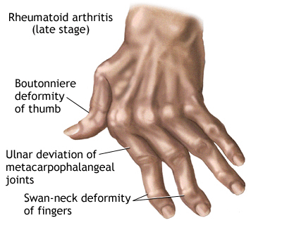 more symptoms of Rheumatoid arthritis image