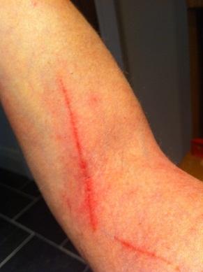 eczema cuts on skin image