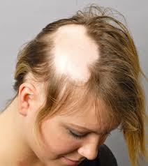 Alopecia-areata also effect women image